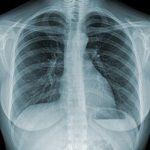 Paraguay: Cámara de Diputados aprueba Ley para atención de la tuberculosis