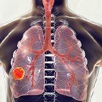 Perú: un paso más hacia el acceso a salud para personas con tuberculosis