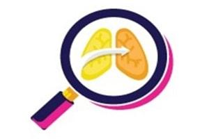 Sociedad civil exige respuesta a la tuberculosis en Perú